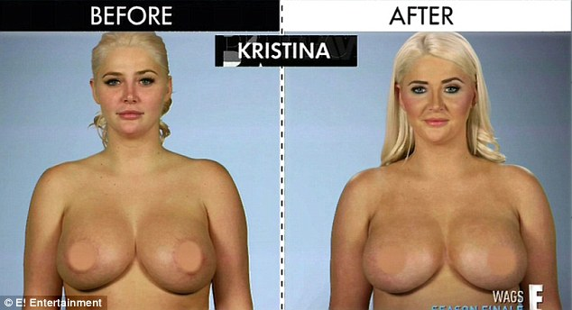 2D288F9400000578-3263501-New_look_Dr_Dubrow_gave_Kristina_smaller_implants_and_reduced_th-a-18_1444234800503-15