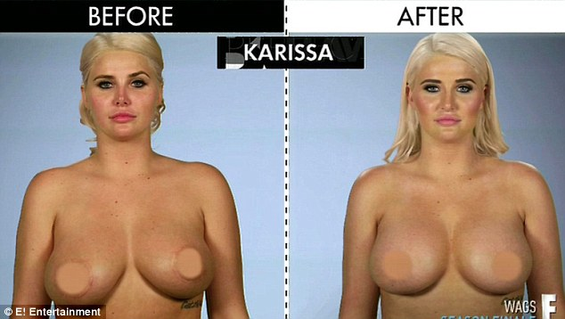 2D288FA900000578-3263501-Brand_new_Karissa_also_needed_to_have_a_breast_lift_right_becaus-a-20_1444234811180-17